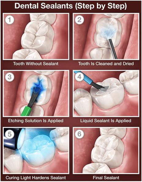 dental sealants ballantyne
