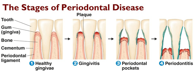 periodontal treatment ballantyne