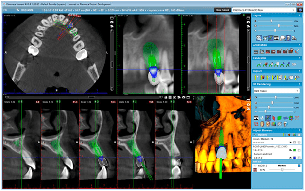 cone beam computed tomography ballantyne