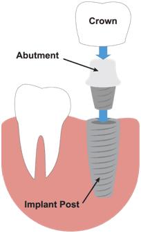 dental implants ballantyne