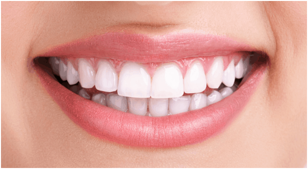 Teeth Whitening Ballantyne NC