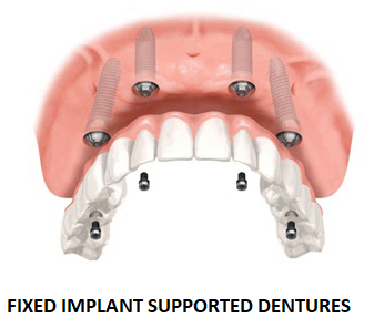 fixed implant supported dentures ballantyne