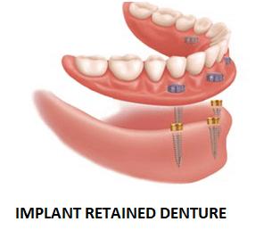 implant retained denture ballantyne