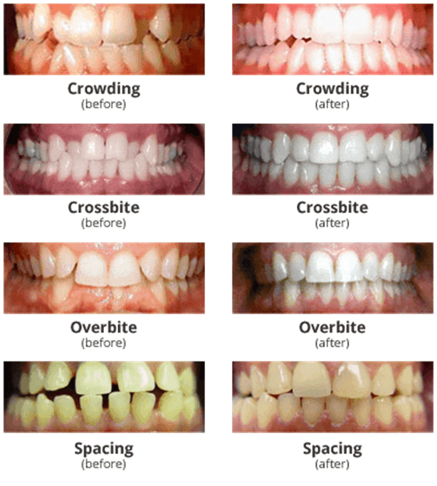 invisalign indications