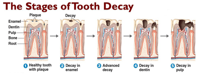 stages of tooth decay charlotte