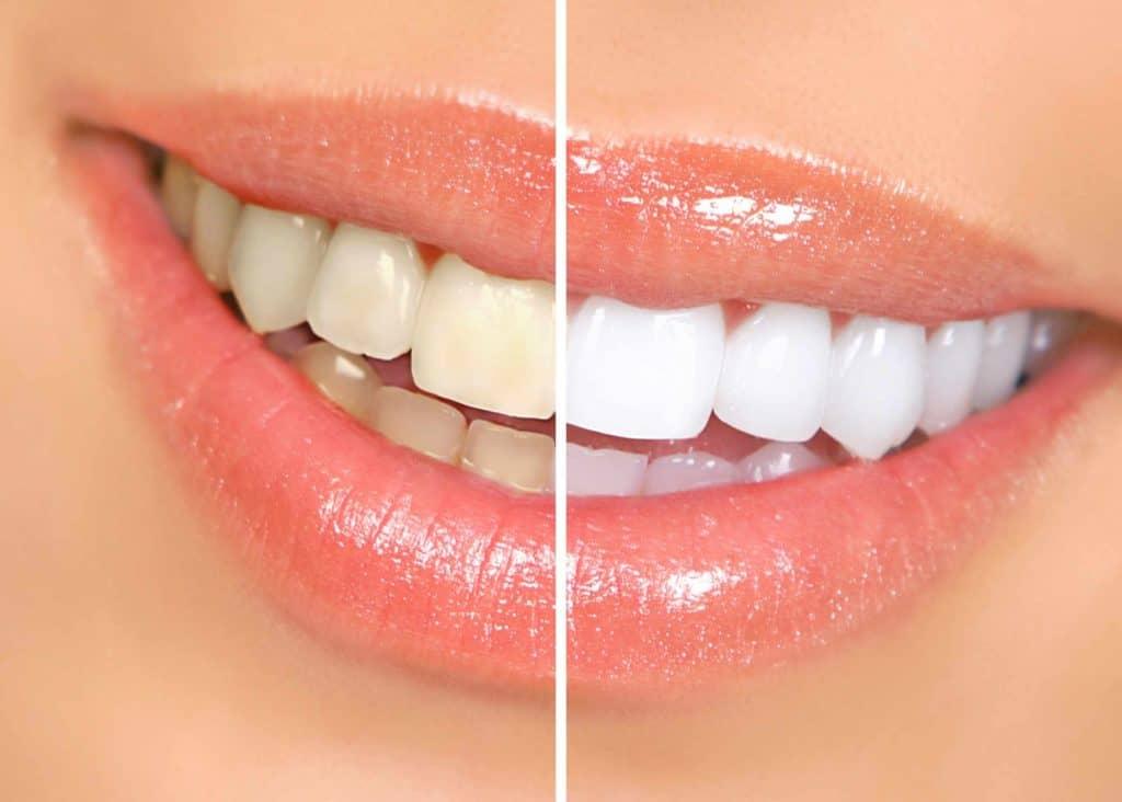 teeth whitening ballantyne nc