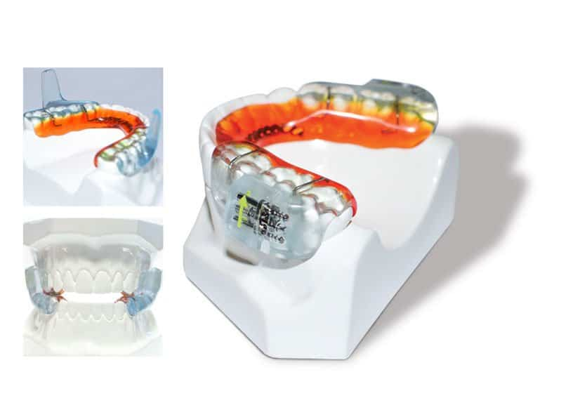 sleep apnea mouthpiece
