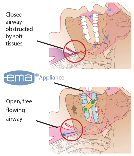 close and open airway